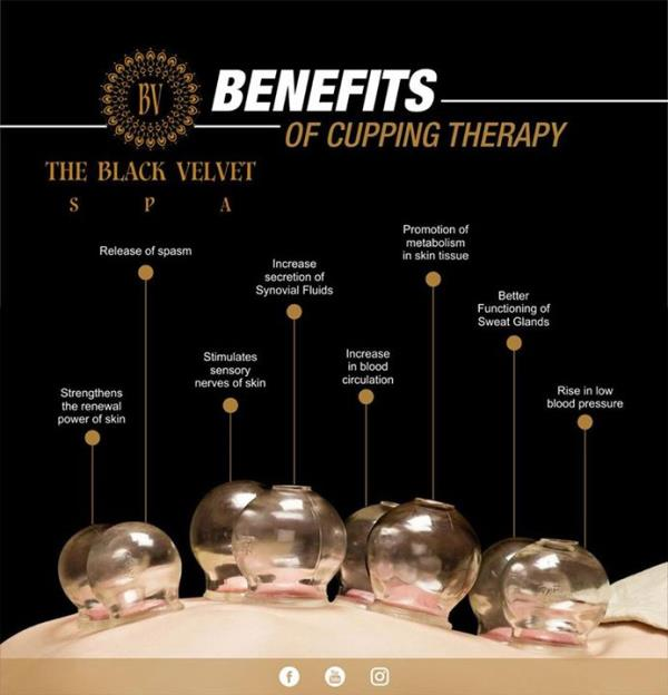 cupping theory